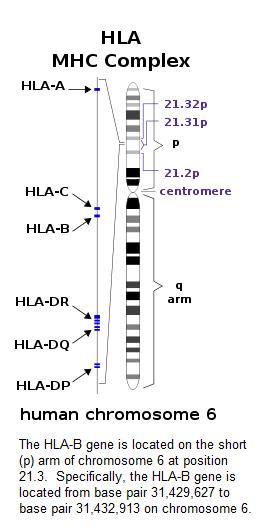 ankylosing spondylitis > hla-b27, Skeleton